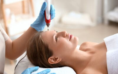 Microneedling: What is it and How Does it Work?